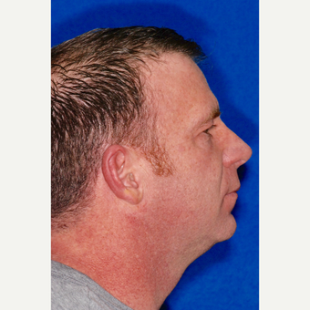 25-34 year old man treated with Rhinoplasty after 3237502