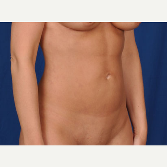 Vaser Hi Def Liposuction after 1829744