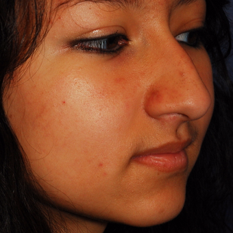 18-24 year old woman treated with Rhinoplasty before 3624055