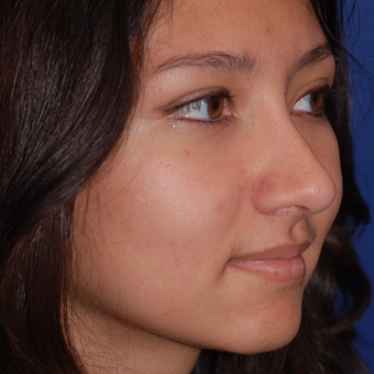 18-24 year old woman treated with Rhinoplasty after 3624055