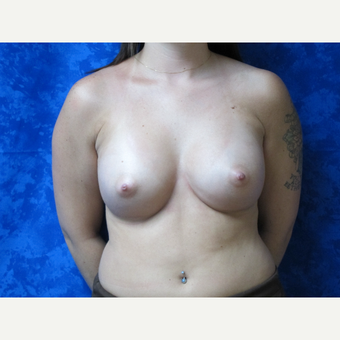 35-44 year old woman treated with Breast Implants after 3301280