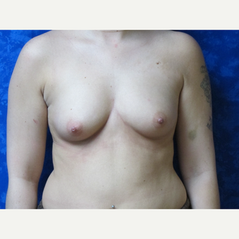35-44 year old woman treated with Breast Implants before 3301280