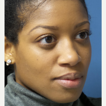 25-34 year old woman treated with African American Rhinoplasty before 3098293