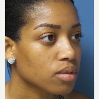 25-34 year old woman treated with African American Rhinoplasty
