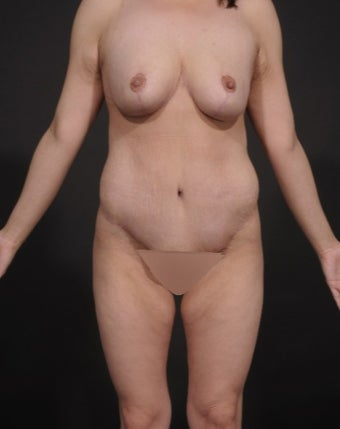25-34 year old woman treated for Mommy Makeover after 1534733