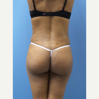 45-54 year old woman treated with Brazilian Butt Lift after 3371275