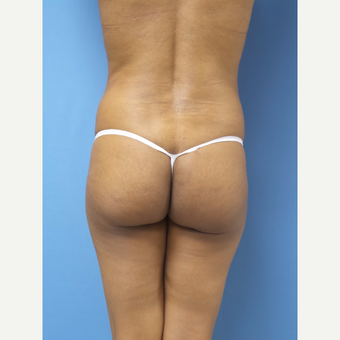 45-54 year old woman treated with Brazilian Butt Lift before 3371275