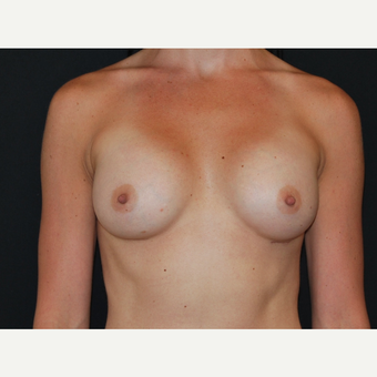 25-34 year old woman treated with Breast Implants after 3651612