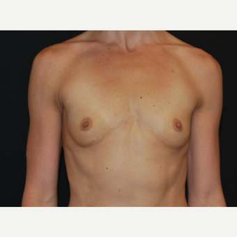 25-34 year old woman treated with Breast Implants before 3651612