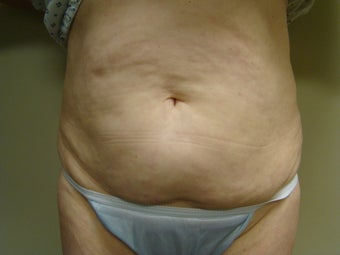 64 Year Old Female - Abdominoplasty before 647336