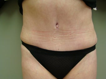 64 Year Old Female - Abdominoplasty after 647336