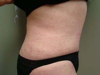 64 Year Old Female - Abdominoplasty 647336