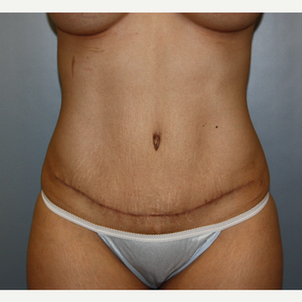 25-34 year old woman treated with Tummy Tuck after 3808894