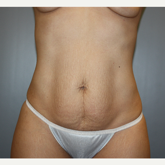 25-34 year old woman treated with Tummy Tuck before 3808894