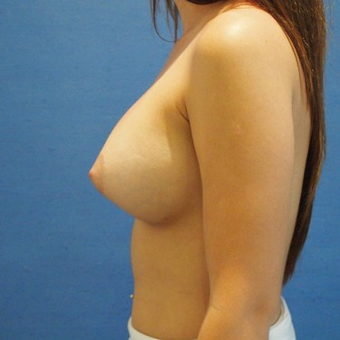 18-24 year old woman treated with Breast Augmentation after 3497304