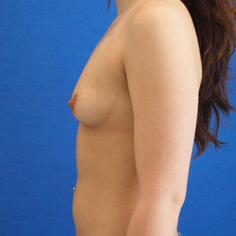 18-24 year old woman treated with Breast Augmentation before 3497304