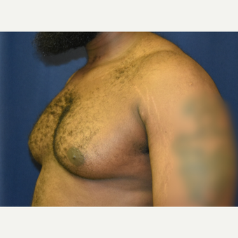 25-34 year old man treated with Male Breast Reduction before 3788345