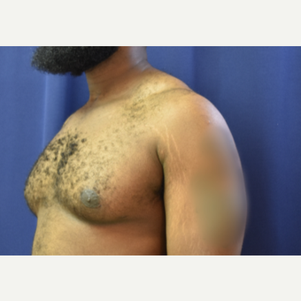 25-34 year old man treated with Male Breast Reduction after 3788345