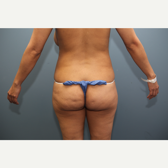 35-44 year old woman treated with Brazilian Butt Lift before 3470262