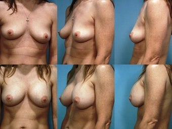 Breast Augmentation before 124500
