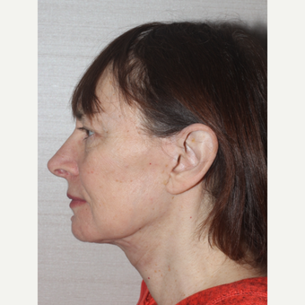 55-64 year old woman treated with Facelift after 3629424