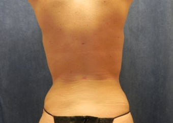 Liposuction after 1072777