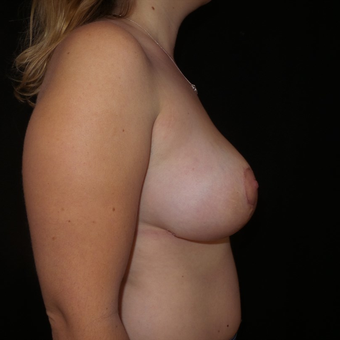 35-44 year old woman treated with Breast Reduction after 3566173