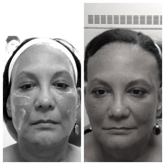Sculptra before and immediately after