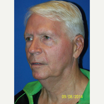 55-64 year old man treated with Facelift before 3033627