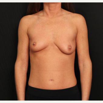 32 year old female with bilateral submuscular silicone implants placed through the underarm before 3575942
