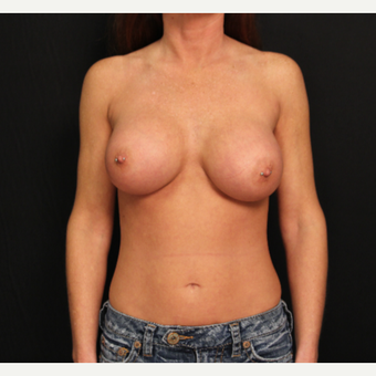 32 year old female with bilateral submuscular silicone implants placed through the underarm after 3575942