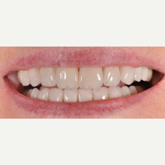 55-64 year old woman treated with Dental Crowns and Veneers after 3842630