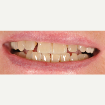 55-64 year old woman treated with Dental Crowns and Veneers before 3842630