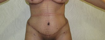 25-34 year old woman treated with Tummy Tuck after 3059957