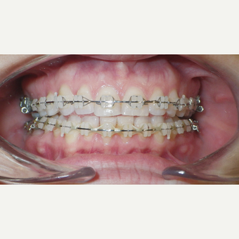 25-34 year old woman treated with Clear Braces before 3465833