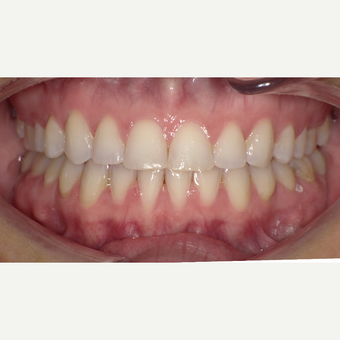 25-34 year old woman treated with Clear Braces after 3465833