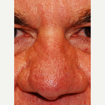 55-64 year old man treated with Laser Resurfacing before 3624555