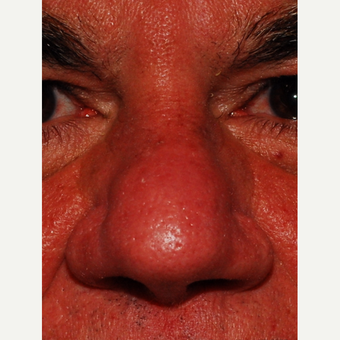 55-64 year old man treated with Laser Resurfacing after 3624555