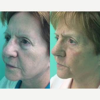 65-74 year old woman treated with ProFractional Laser before 2960759