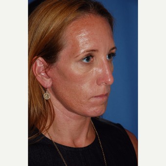 35-44 year old woman treated with Facelift after 3610234