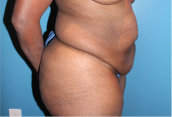 35-44 year old woman treated with Tummy Tuck before 3670485