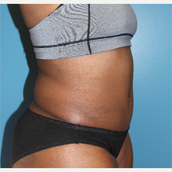 35-44 year old woman treated with Tummy Tuck after 3670485