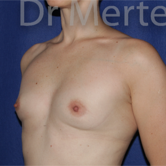 35-44 year old woman treated with Breast Augmentation before 3551663