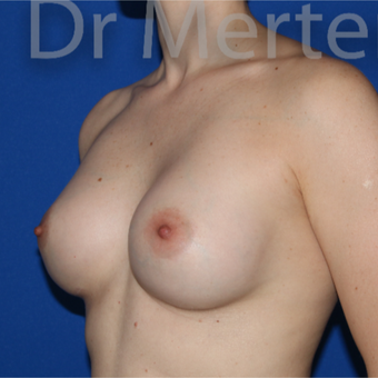 35-44 year old woman treated with Breast Augmentation after 3551663