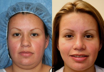 Rhinoplasty, neck liposuction, chin augmentation before 252416