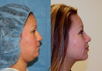 Rhinoplasty, neck liposuction, chin augmentation after 252416