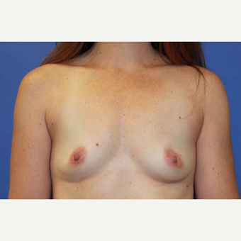 35-44 year old woman treated with Breast Augmentation before 3399776