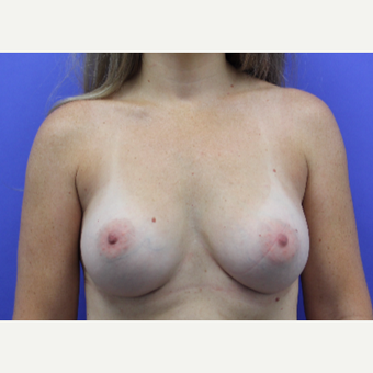 35-44 year old woman treated with Breast Augmentation after 3399776