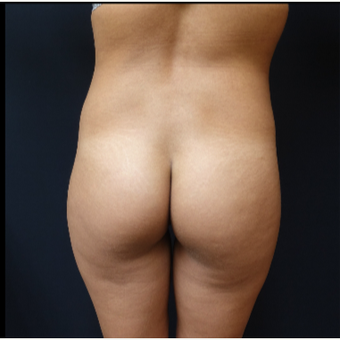 25-34 year old woman treated with 548cc Round Silicone Butt Implants for her Butt Augmentation before 3033281