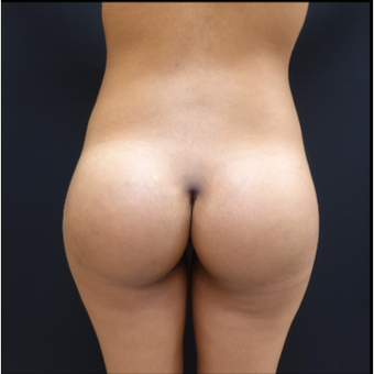 25-34 year old woman treated with 548cc Round Silicone Butt Implants for her Butt Augmentation after 3033281